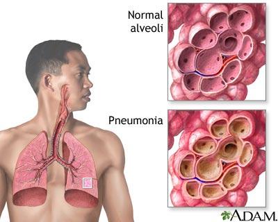 hur vet man om man har lunginflammation